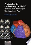 Protocolos de cardio-RM y cardio-TC de la Unidad de Imagen Cardíaca Sant Pau